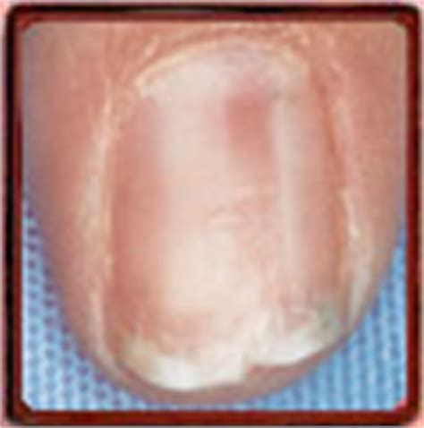 red nail beds nail tutor result red macule in nail bed nail plate