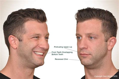 what hair suits a strong chin weak jaw and overbite correction without surgery face