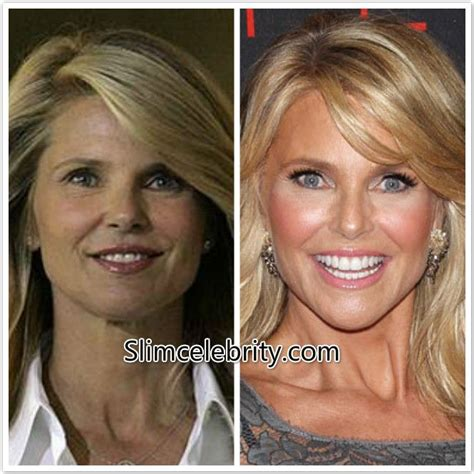 Christie Brinkley Gets Emergency Surgery by Christie Brinkley Plastic Surgery Before And After Photos