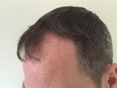 new hair transplant new hair transplant photos westminister clinic