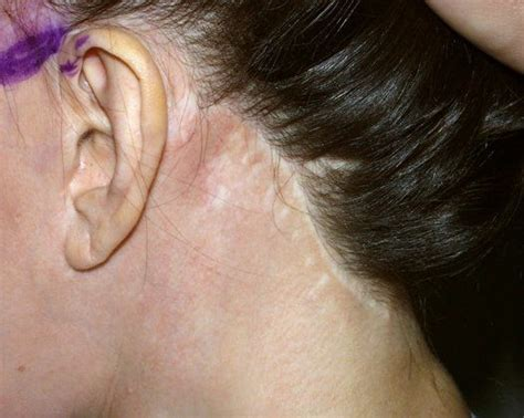hairstyles that cover face lift scars facelift scar and sideburn repair by dr konior hair