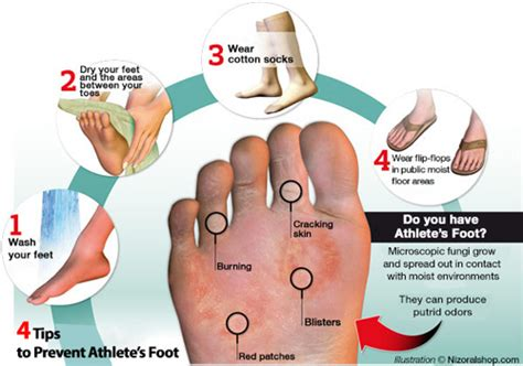 athletes foot shoe treatment the sports archives athlete s foot stigma of the toes