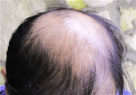 europa sintheric hair transplant hair transplant fue biofibre or nido exoderm medical