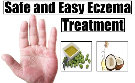 home remedies for eczema treatment cure remedy for