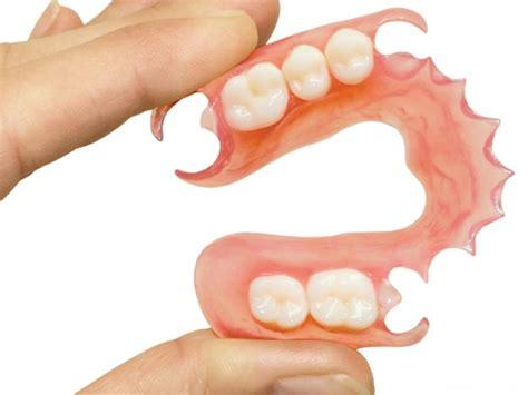 protesi dentali mobili protesi dentali roma