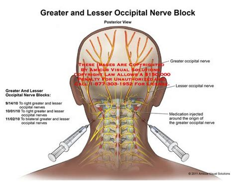 25 best ideas about occipital nerve block on