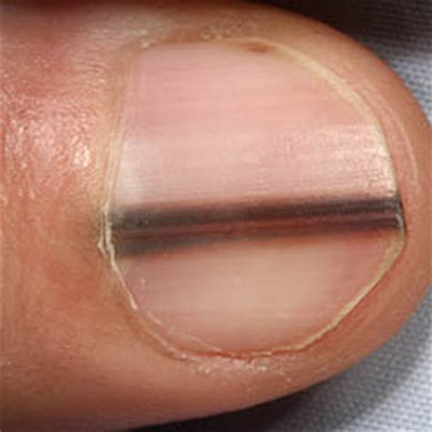 Speaking Of Healthy Nails by Things Your Fingernails Reveal About Your Health