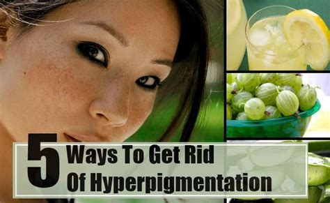 best and effective ways to get rid of hyperpigmentation