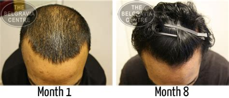 rogaine propecia success stories my hair loss story and what you can do about yours pics