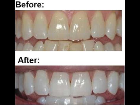home teeth whitening  stella white strips youtube
