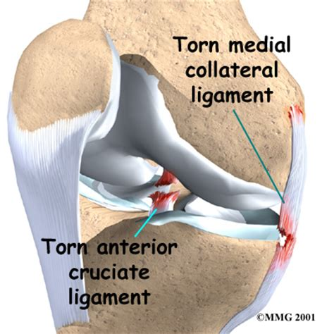 knee injury sprains and strains ligament and tendon injuries of