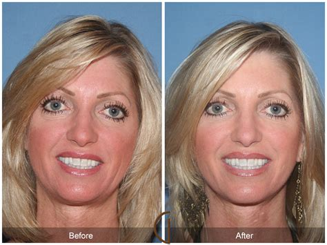 women face lift face orange county before after photos
