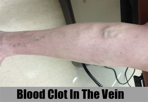 Blood Clot In Leg Treatment At Home by 5 Symptoms Of A Blood Clot How To Identify Symptoms Of