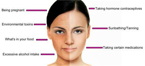 color changes during pregnancy 7 secret reasons your skin pigment changes colour healthista