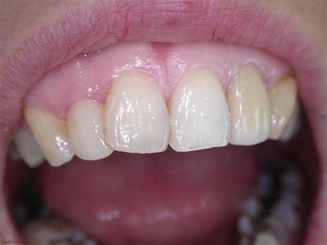 max toothdocinc kuala lumpur malaysia