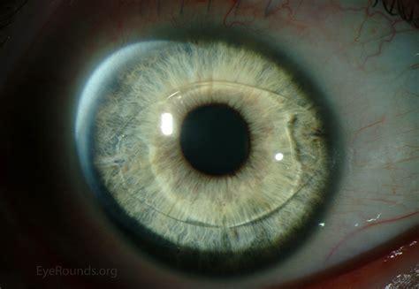 phakic intraocular lenses for high myopia