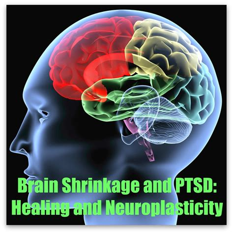 Brain Shrinks To Detox At by Brain Shrinkage And Ptsd Peak Resilience
