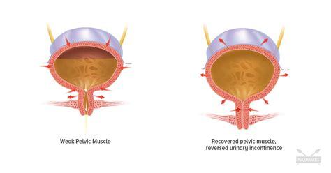 exercises  strengthen  pelvic floor paleohacks