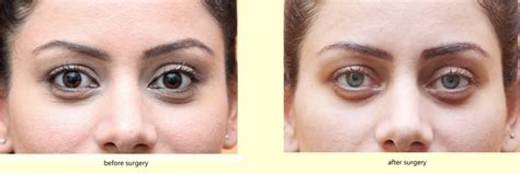 permanent eye color surgery permanent eye colour change surgery in india vasan