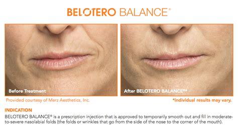 belotero balance dermal filler dermal filler provides belotero 174 aamlc vancouver canada
