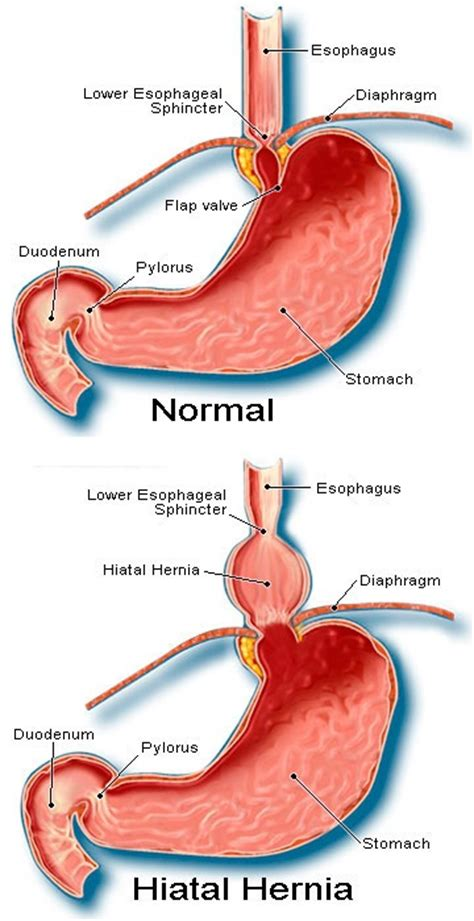 diagram of hiatal hernia hiatal hernia symptoms causes treatment diet surgery