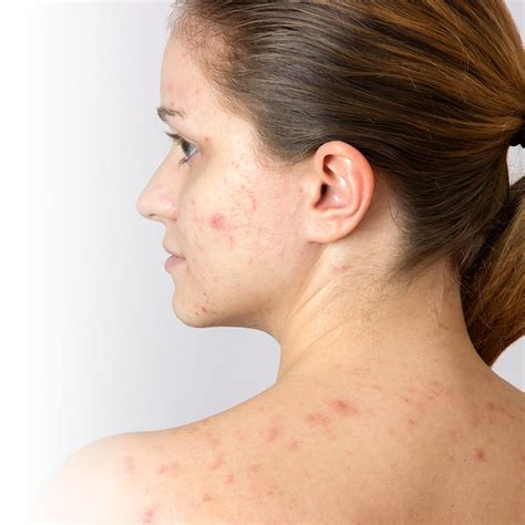 solutions   rid  adult acne jean coutu