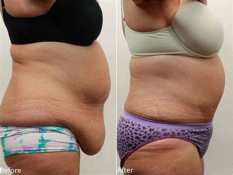 fat above c section scar abdominoplasty tummy tuck after weight loss surgery