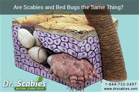 can bed bugs cause scabies can bed bugs cause scabies 28 images can bed bugs