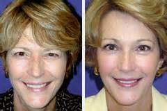 brustimplantate vorher nachher fotos lifting du visage lifting minilift ou peeling info