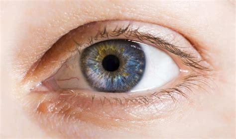imagenes de ojos zarcos 191 por qu 233 una misma persona puede tener ojos de diferente