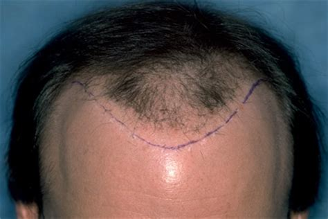 dr batra hair loss treatment cost graft excision for hair transplant repair search results