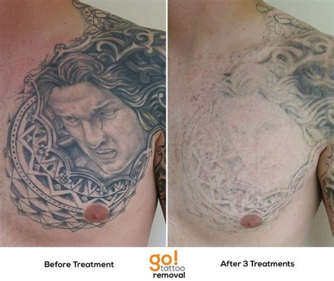 quarter sleeve tattoo removal 10 best images about tattoo removal in progress on