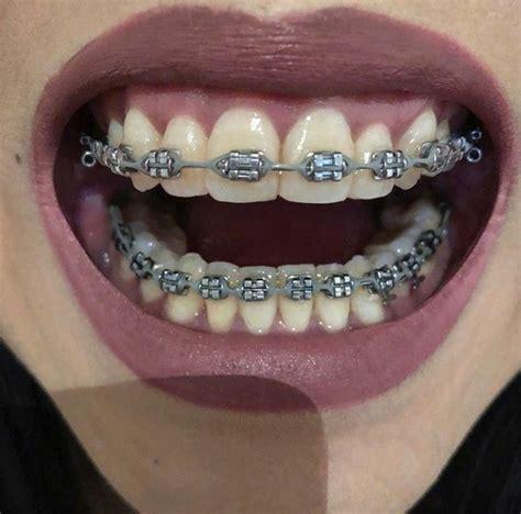 power chain braces colors braces braceface metalbraces girlswithbraces