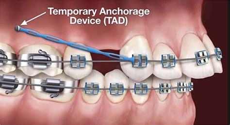 discuss  significant  anchorage  orthodontics