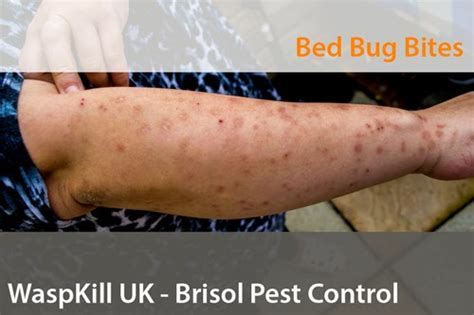 a severe bed bug infestation in bristol