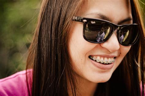 apparecchi dentali interni tutto quello avresti voluto sapere sull ortodonzia