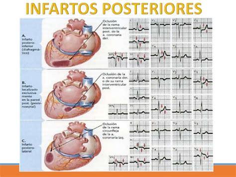infarto miocardio bandamobile infarto de miocardio