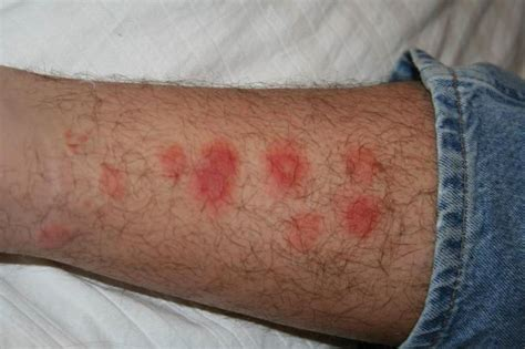 photo of bed bug bites help i m getting bit a guide to identifying bug bites