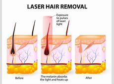 Laser Hair Removal Naperville | Laser Aesthetic Center Anxiety Treatment Center Reviews