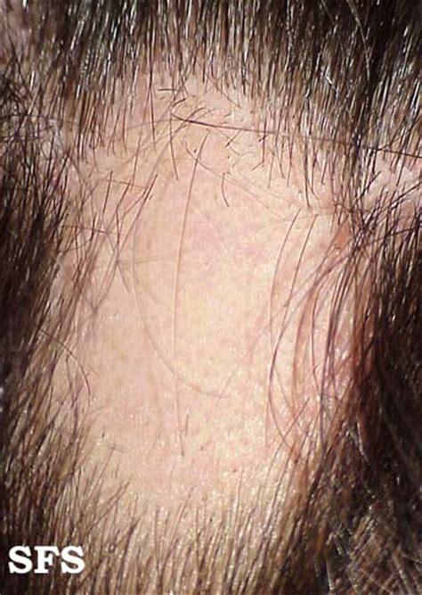male pattern hair loss dermnet nz male pattern hair loss or androgenetic alopecia male