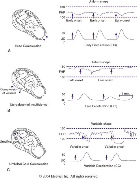 heart monitor pattern figure 85 4 patterns of periodic fetal heart rate fhr