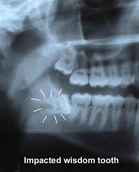 tooth extraction cost 17 best ideas about wisdom teeth removal cost on dental dental