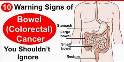 symptoms of colon colorectal cancer in