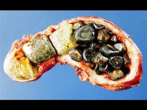 Detoxing Gallbladder And Liver by Kidney Liver Cleanse Glytamins Liver Detoxification
