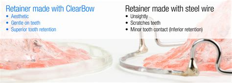 Acrylic Retainer clearbow hawley retainer clear retainers after braces