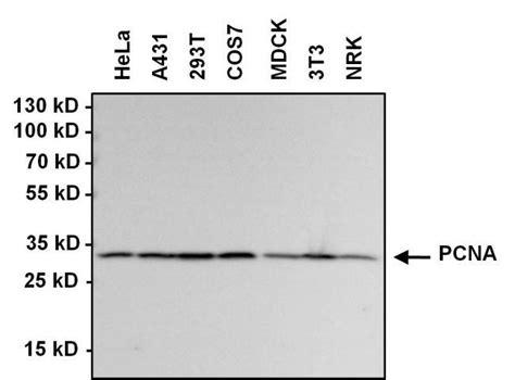 protein l hrp goat anti rabbit igg h l hrp