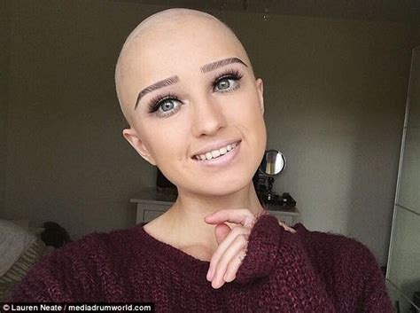 Is Bald She by Bridgend With Alopecia Posts Selfies Of Bald