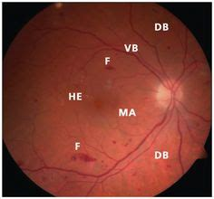 fundus exam findings 1000 images about diabetic retinopathy on pinterest