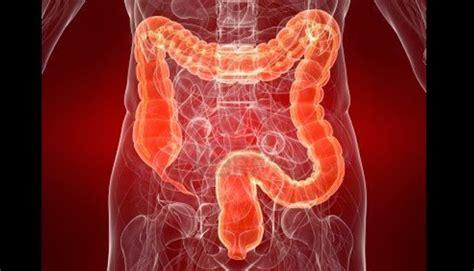 Obat Ivermectin Untuk Manusia obat tradisional untuk membersihkan usus besar dari racun