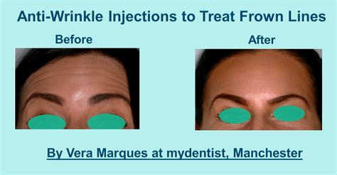 7 Wrinkle Areas And How To Treat Them by Anti Wrinkle Injections Information And Before After Images